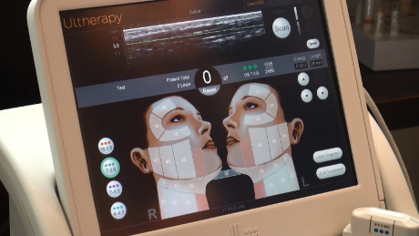 Ultrasound Imaging for Ultherapy